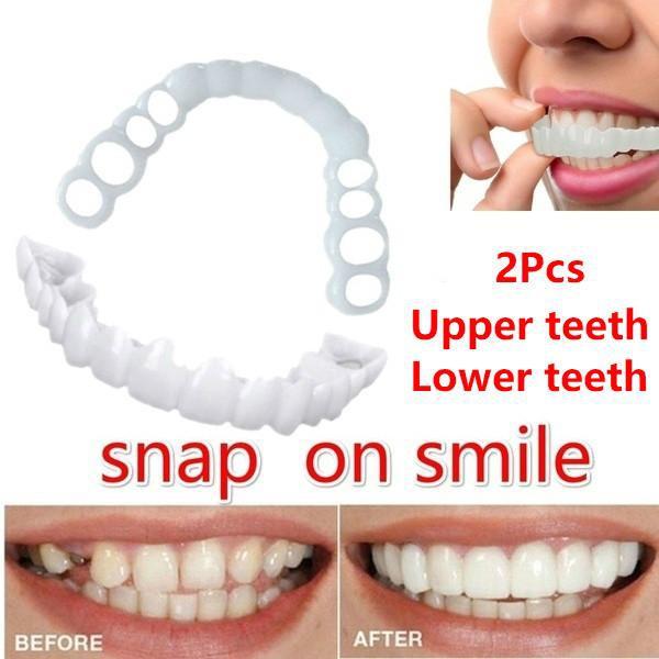 Dụng cụ niềng răng tại nhà snapon smile